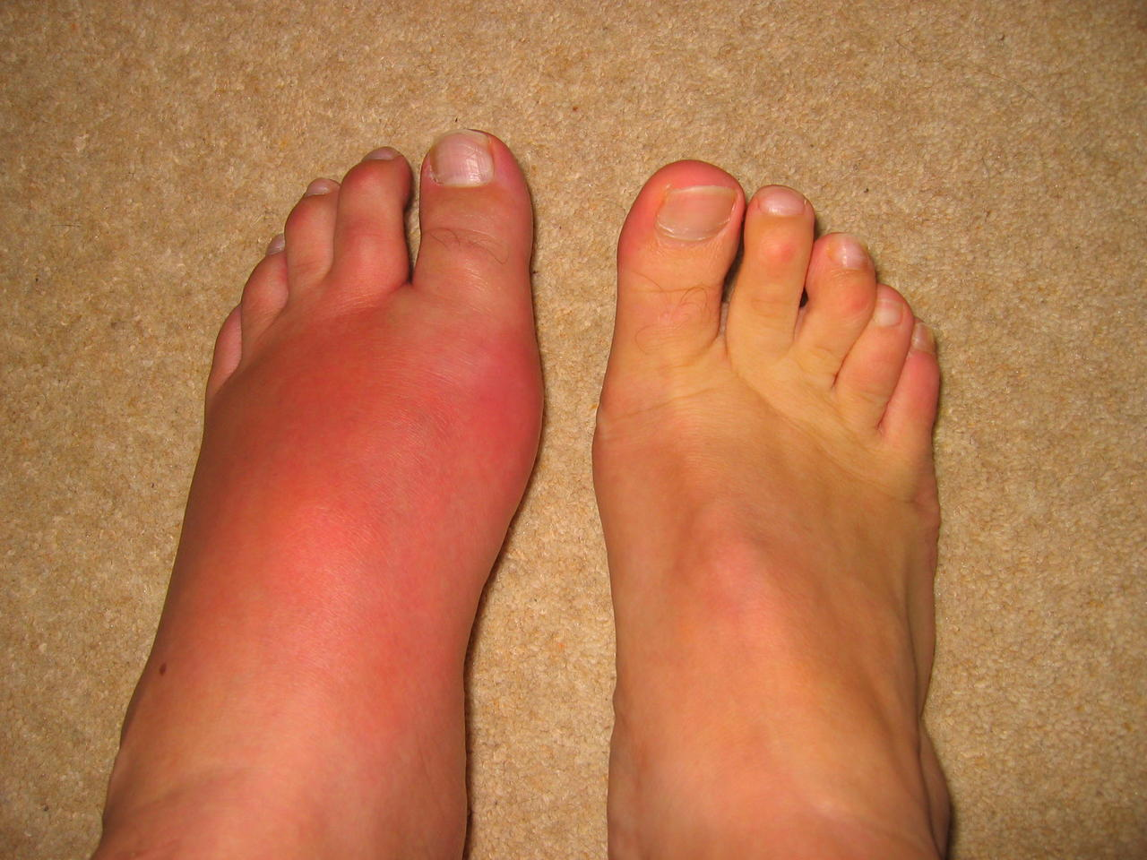 swollen foot due to gout
