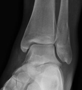Dr Morton's Broken Ankle