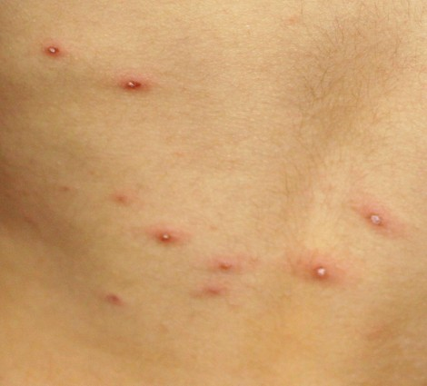 chicken pox photo showing blisters