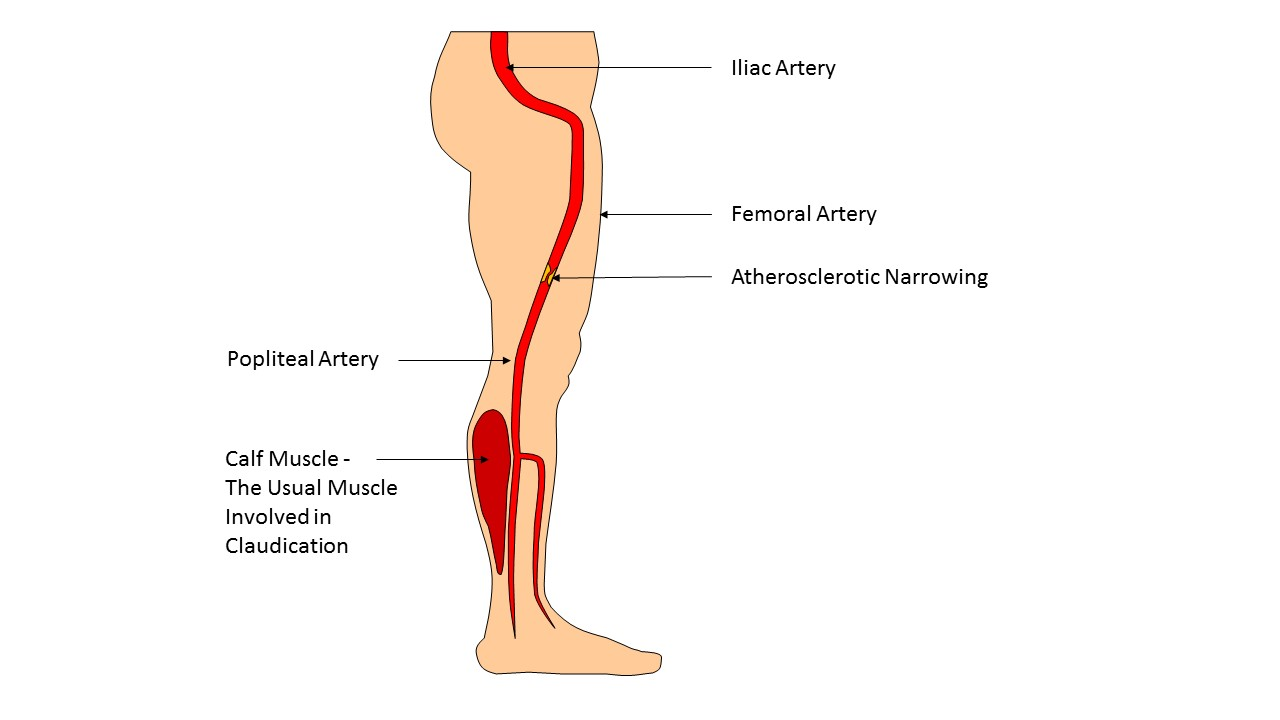 Claudication – my leg pain explained - medical empowerment