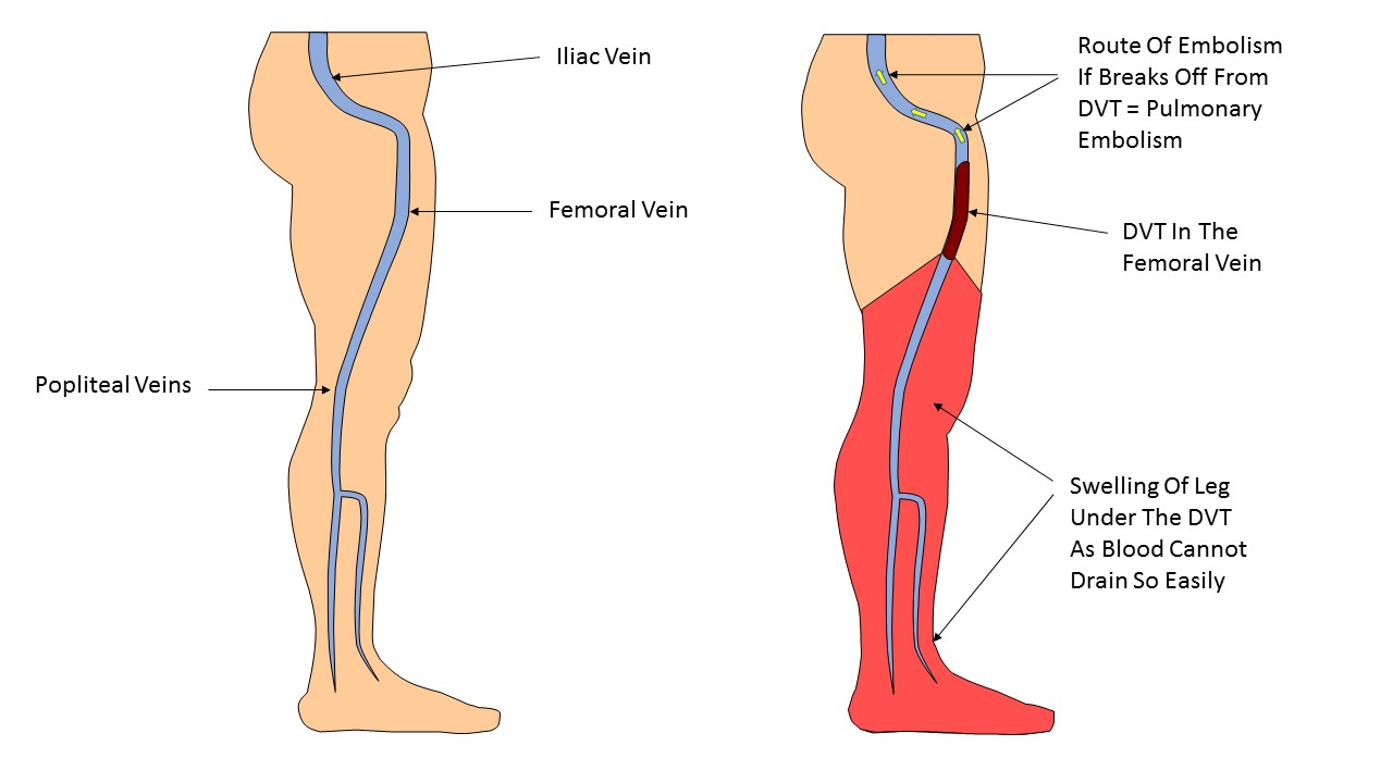 Effects of DVT in Leg