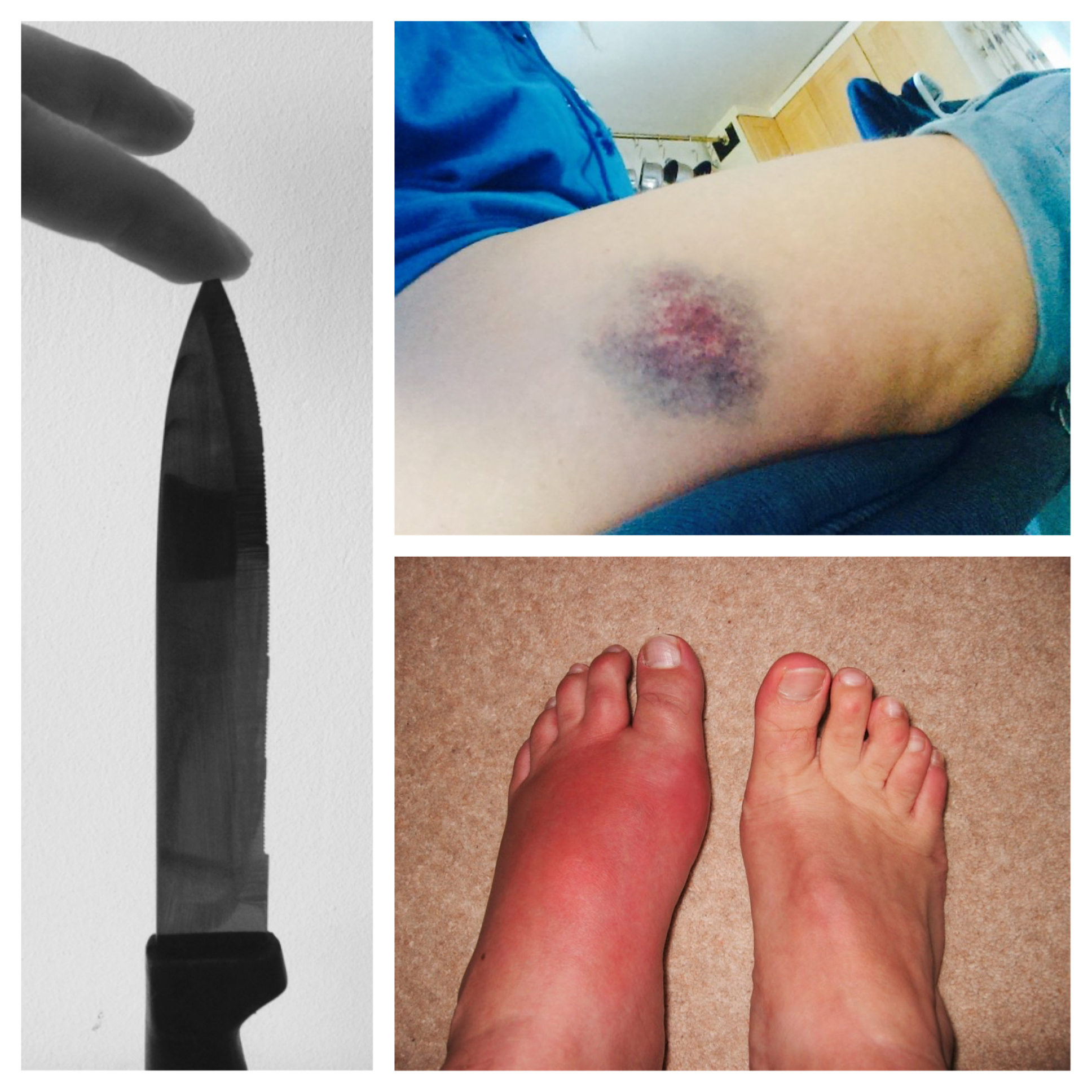 Dr Morton's - types of pain