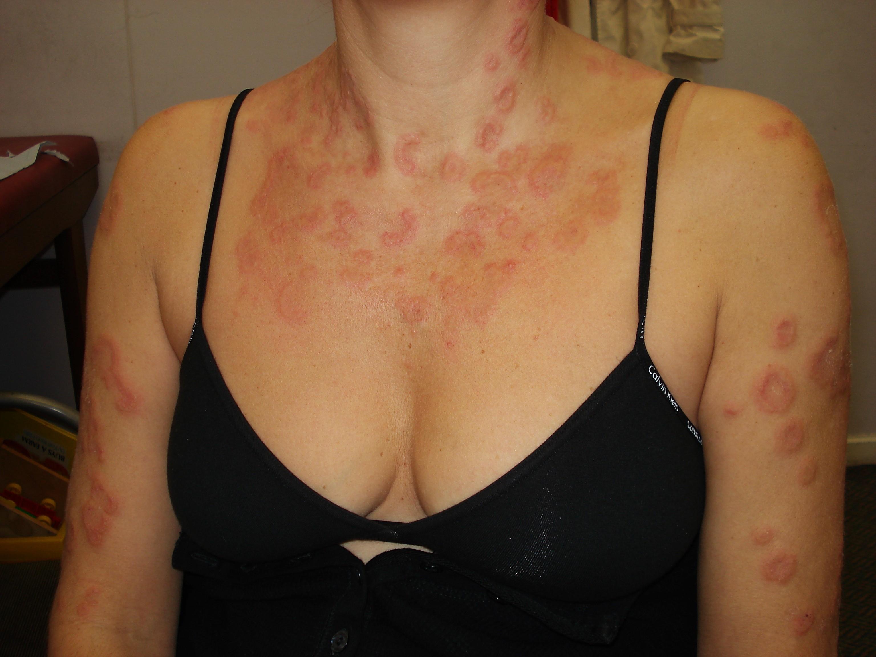 Dr Morton's - urticaria skin rash